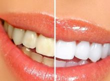 blanqueamiendo dental